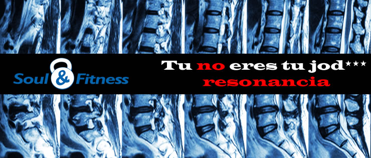 Diagnostico de espalda y deporte: Tu no eres tu jod*** resonancia